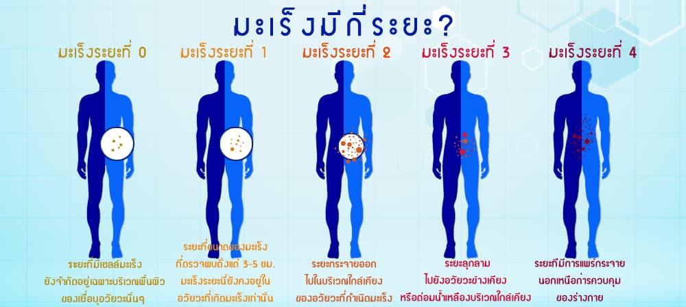 ระยะของโรคมะเร็ง (Stage of Cancer)