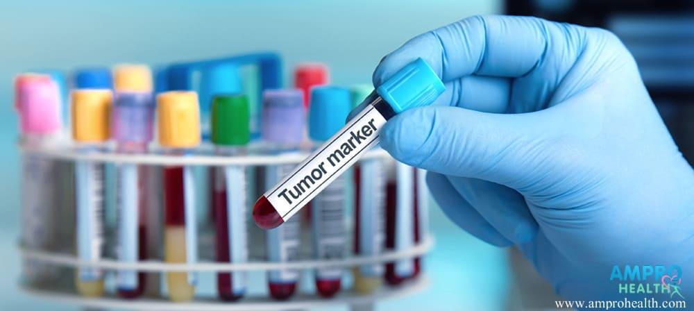 การตรวจเลือดเพื่อหาสารบ่งชี้ สัญญาณป่วยโรคมะเร็ง