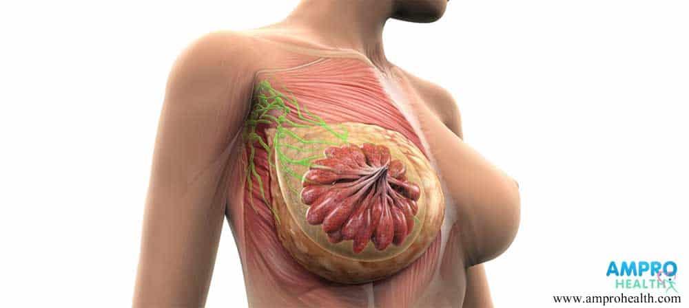 อาการเบื้องต้นและกระบวนการเกิดมะเร็งเต้านม
