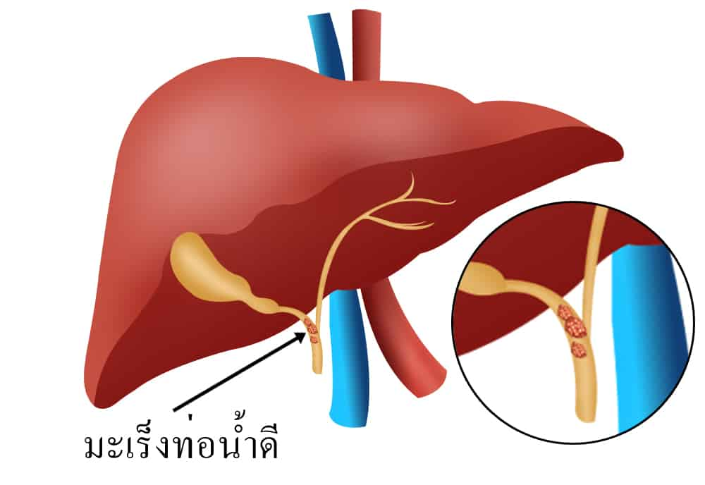 โรคมะเร็งท่อน้ำดี (Cholangiocarcinoma)