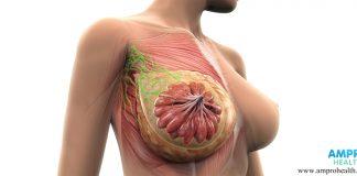 CA 15-3 สารวัดค่ามะเร็งเต้านม