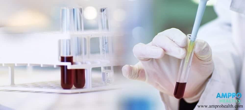 CA 19-9 สารวัดค่ามะเร็งช่องทางเดินการย่อยอาหาร