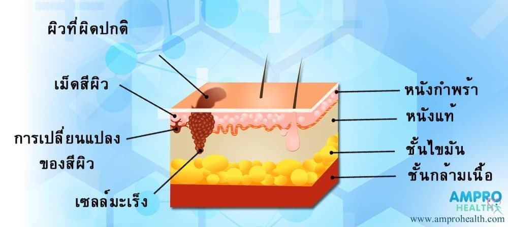 โรคมะเร็งผิวหนัง (Skin Cancer)