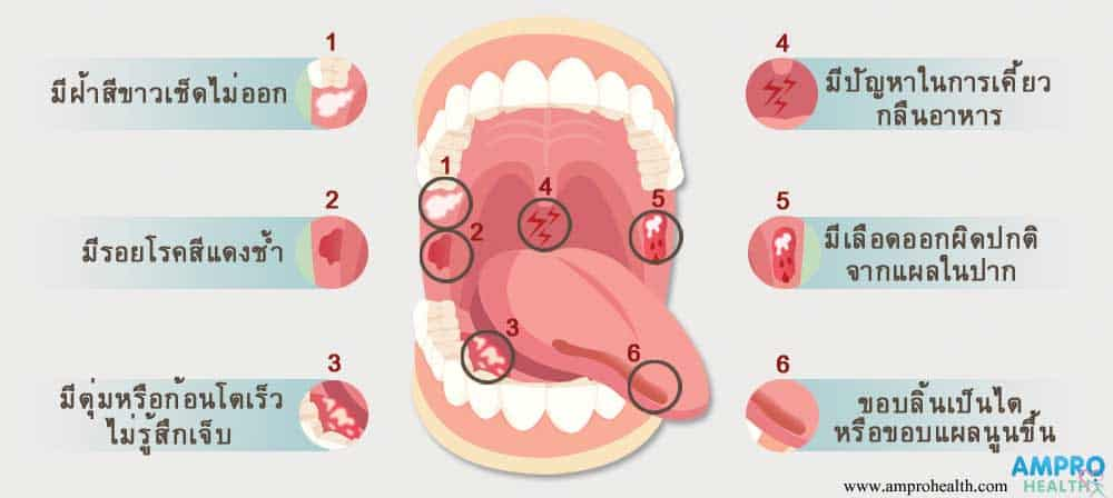 โรคมะเร็งช่องปาก โรคร้ายที่เกิดขึ้นภายในระบบศีรษะและลำคอ