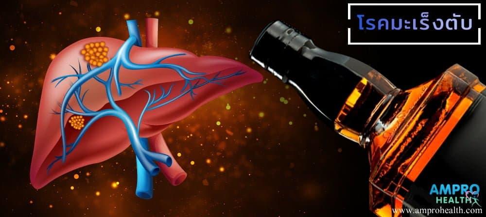 โรคมะเร็งตับ (Liver Cancer)