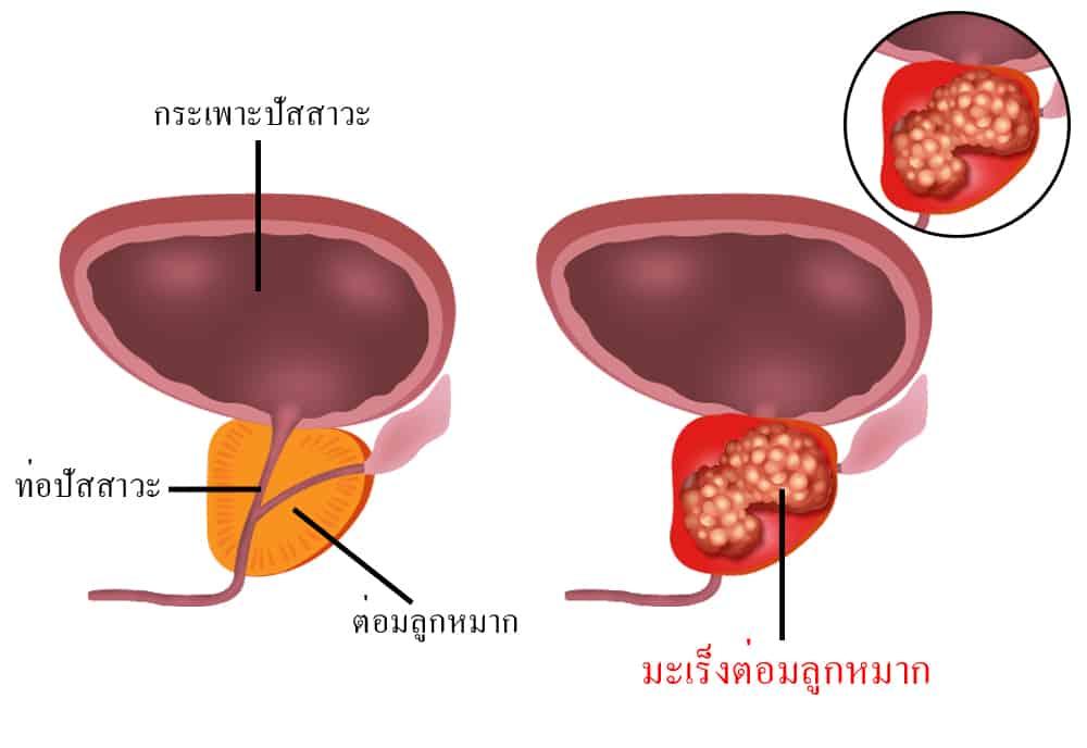 โรคมะเร็งต่อมลูกหมาก (Prostate Cancer)
