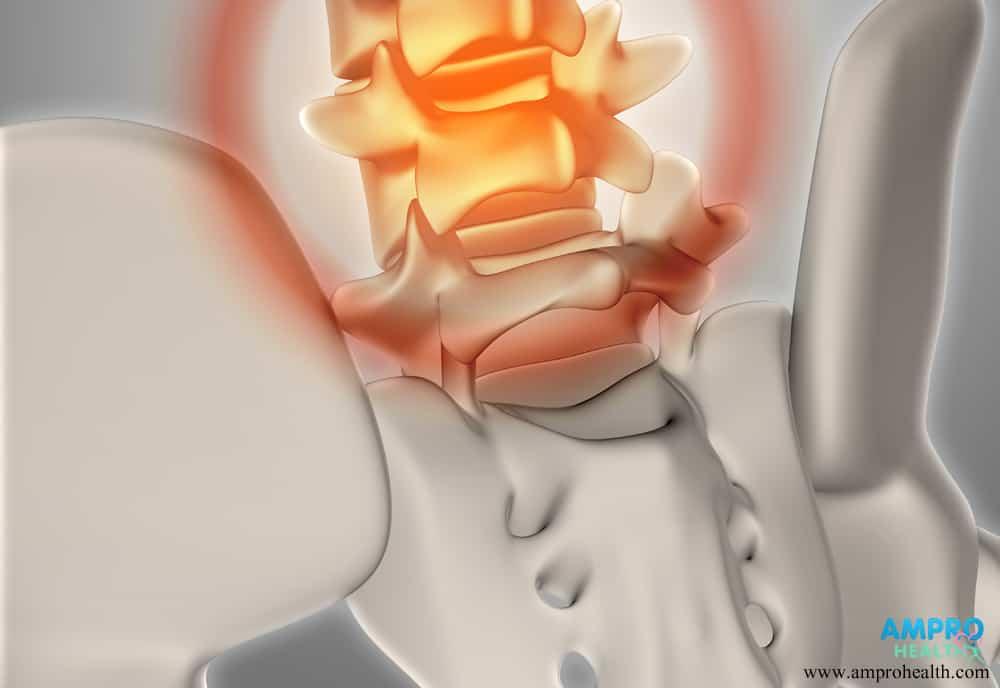 การตรวจของเหลวในไขสันหลัง (CSF)