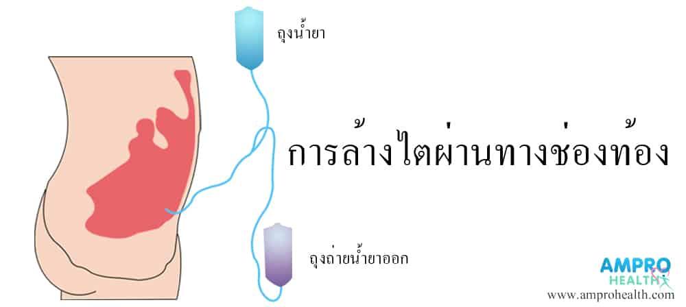 วิธีการบำบัดทดแทนไต (Kidney Replacement Therapy)