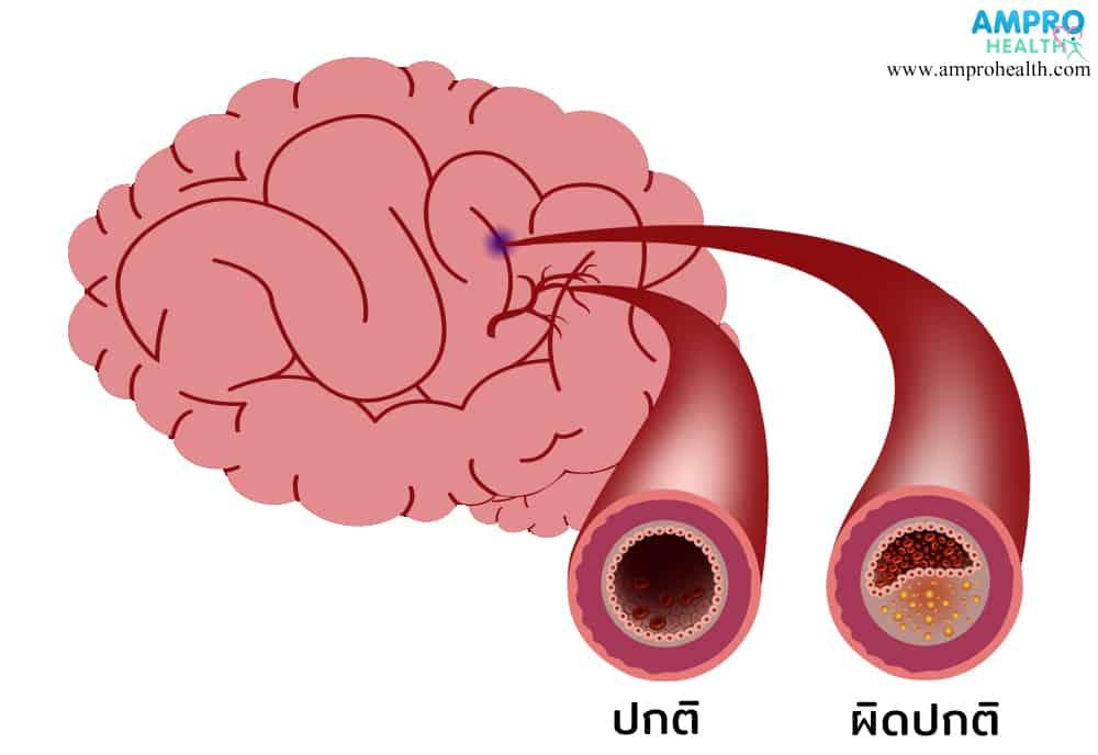 โรคหลอดเลือดสมอง สาเหตุ อาการ และวิธีการรักษา (Stroke)