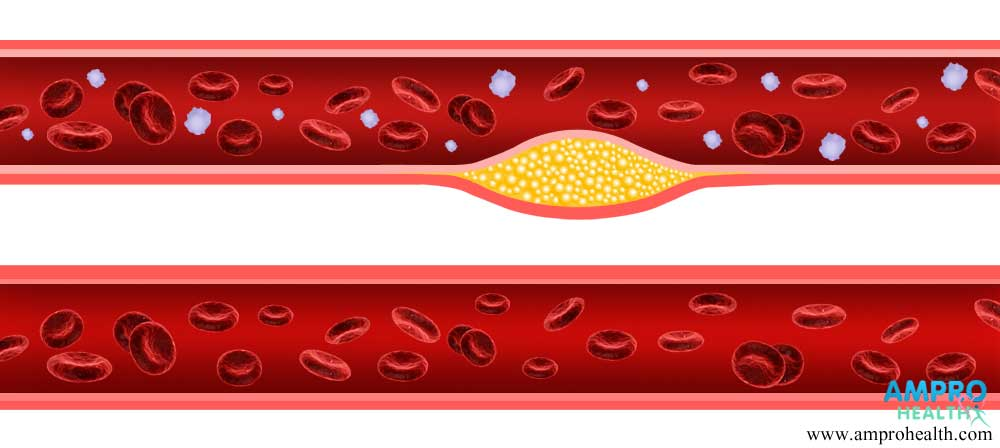 ไตรกลีเซอไรด์ (Triglyceride) คืออะไร?