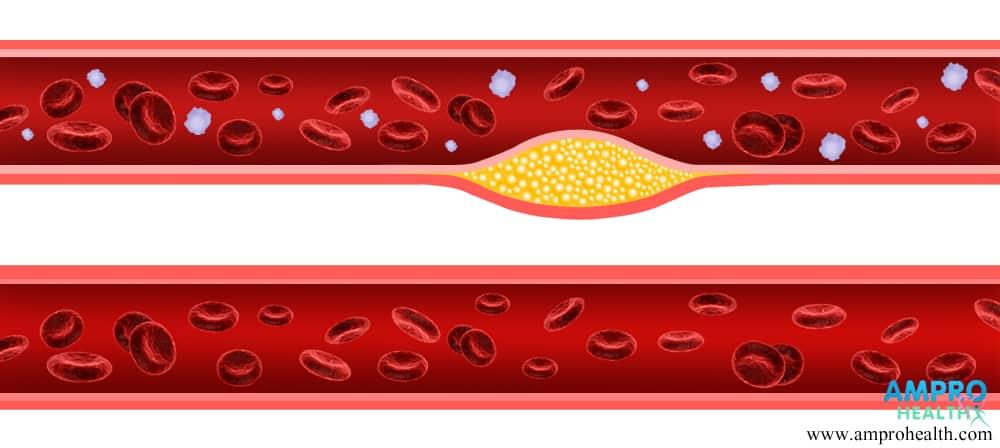 ไตรกลีเซอไรด์ (Triglyceride)