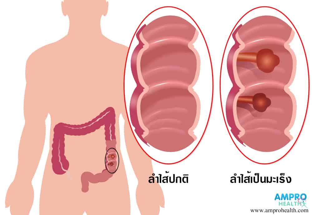 โรคมะเร็งลำไส้ใหญ่ สาเหตุ อาการ วิธีรักษาโรคมะเร็งลำไส้ใหญ่ (Colorectal Cancer)