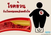 โรคอ้วนกับโรคหลอดเลือดหัวใจ (Obesity and coronary artery disease)
