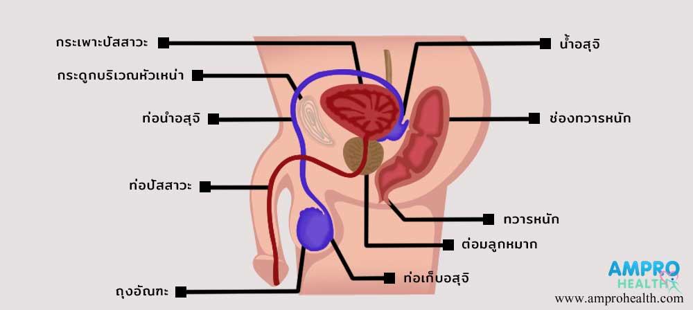 โรคมะเร็งองคชาติ (Penile Cancer)