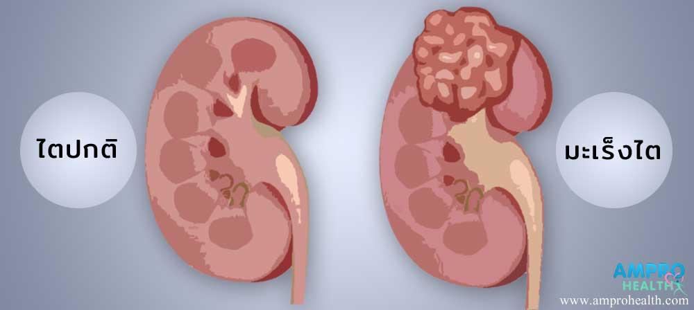 อาการ สาเหตุและวิธีการรักษาโรคมะเร็งไต (Kidney Cancer)