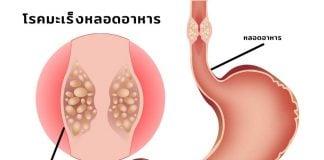 สาเหตุและอาการของโรคมะเร็งหลอดอาหาร (Esophageal Cancer)