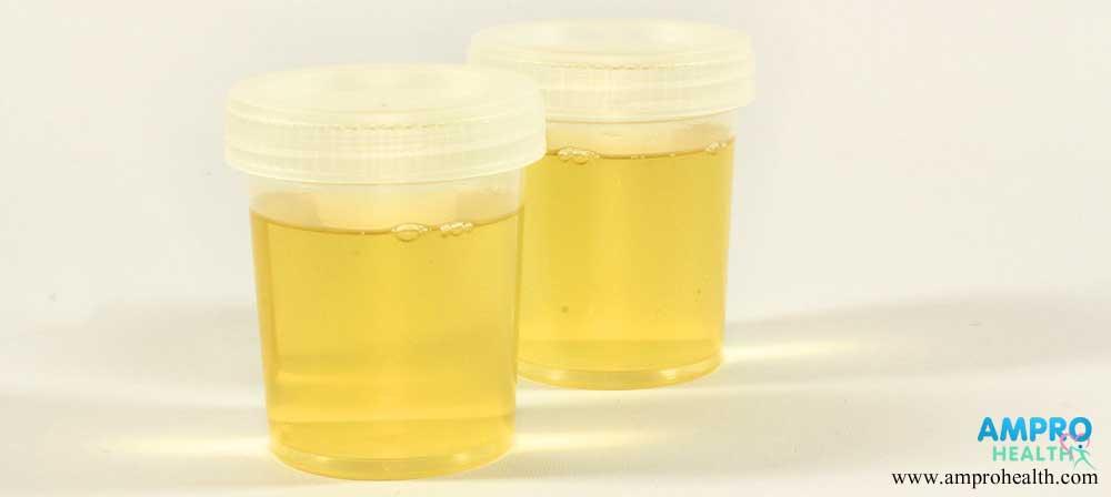การตรวจปัสสาวะหาค่าความผิดปกติของร่างกาย (Urinalysis)