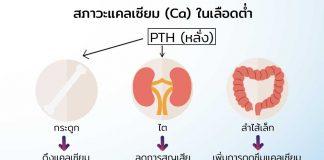 การตรวจปัสสาวะหาค่า-Urine-Calcium