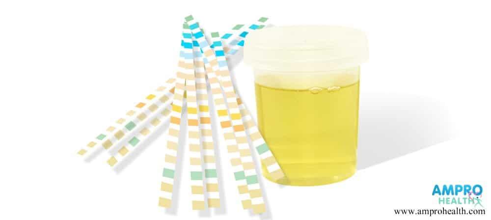 การตรวจปัสสาวะหาค่า Urine Spot MAU/creatinine ratio
