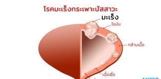 โรคมะเร็งกระเพาะปัสสาวะ (Urinary Bladder Cancer)