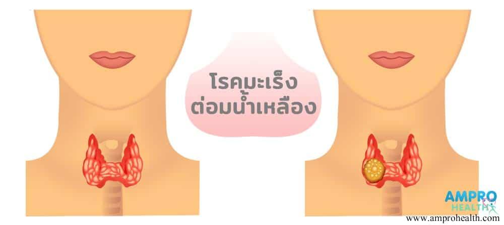 โรคมะเร็งต่อมน้ำเหลือง (Lymphoma)