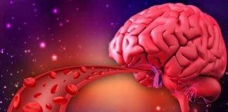 สมองเสื่อมจากโรคหลอดเลือดสมอง