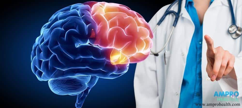 ภาวะถดถอยทางสมองหรือภาวะเอ็มซีไอ (MCI)