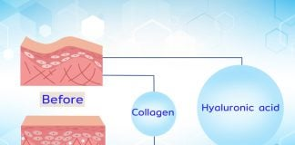 Hyaluronic acid (กรดไฮยาลูโรนิค) คืออะไรเกี่ยวอะไรกับ ฟิลเลอร์