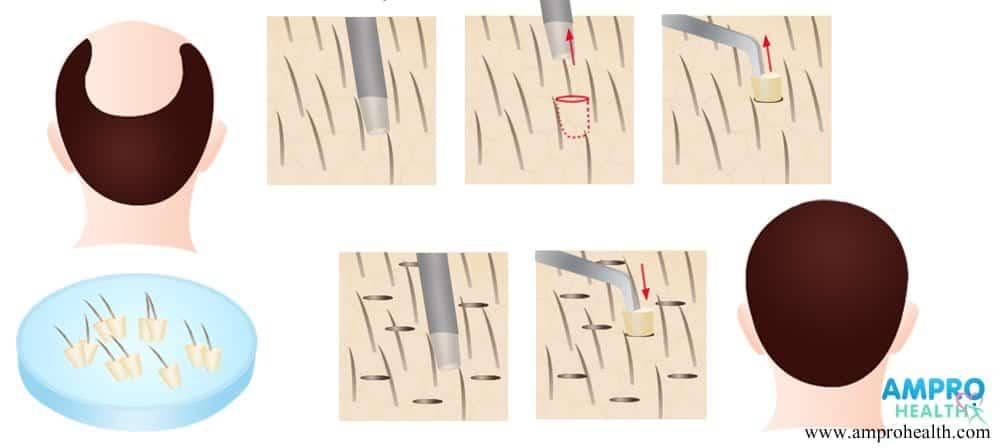ศัลยกรรมปลูกผมแบบ FUE สร้างเส้นผมถาวร แบบ ไร้รอยแผล