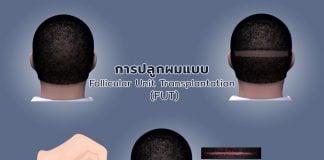 การปลูกผมแบบ Follicular Unit Transplantation (FUT) ทำครั้งเดียวสร้างเส้นผมใหม่ที่ถาวร