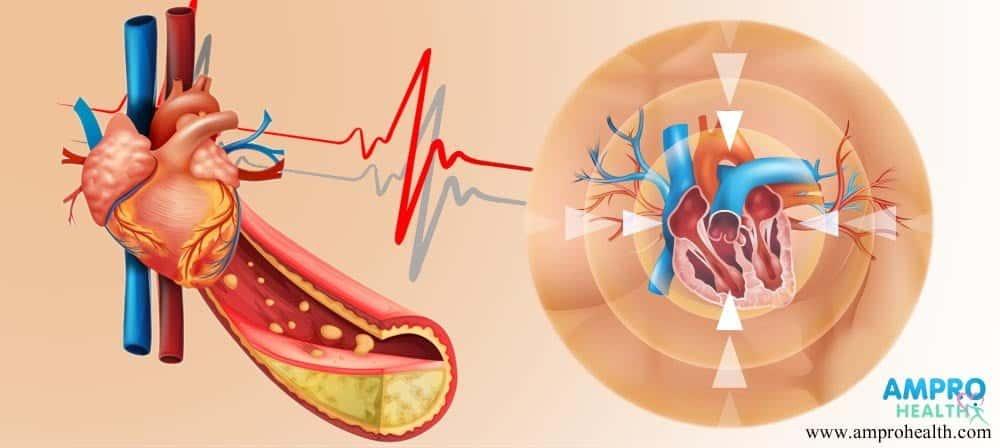การฉายรังสีรักษามะเร็งมีผลกระทบจากต่อหัวใจอย่างไร