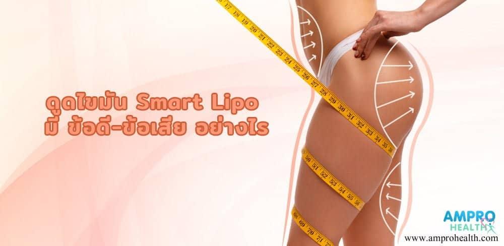 ดูดไขมัน Smart Lipo มี ข้อดี-ข้อเสีย อย่างไร