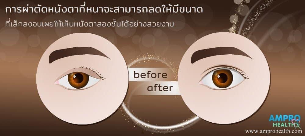 วิธีกรีดแผลศัลยกรรมชั้นตาตามความเหมาะสม
