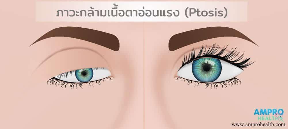 """ไขข้อสงสัย """"การทำตา"""" และทำตาแบบ """"ฝ.""""คืออะไร"""