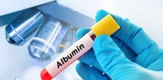 การตรวจ Albumin ในเลือดจำเป็นอย่างไร