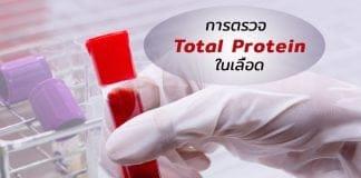การตรวจ Total Protein ในเลือดจำเป็นอย่างไร