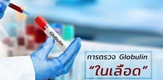 การตรวจ Globulin ในเลือดจำเป็นอย่างไร