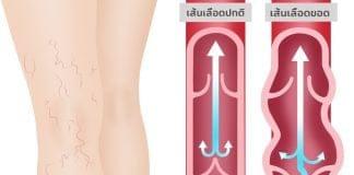 เส้นเลือดขอดและวิธีรักษา