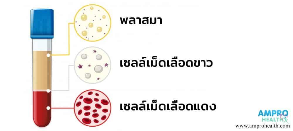 สภาวะเม็ดเลือดขาวสูง ( Leukocytosis )
