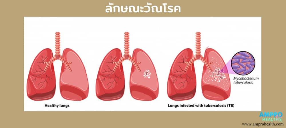 วัณโรค ( Tuberculosis )