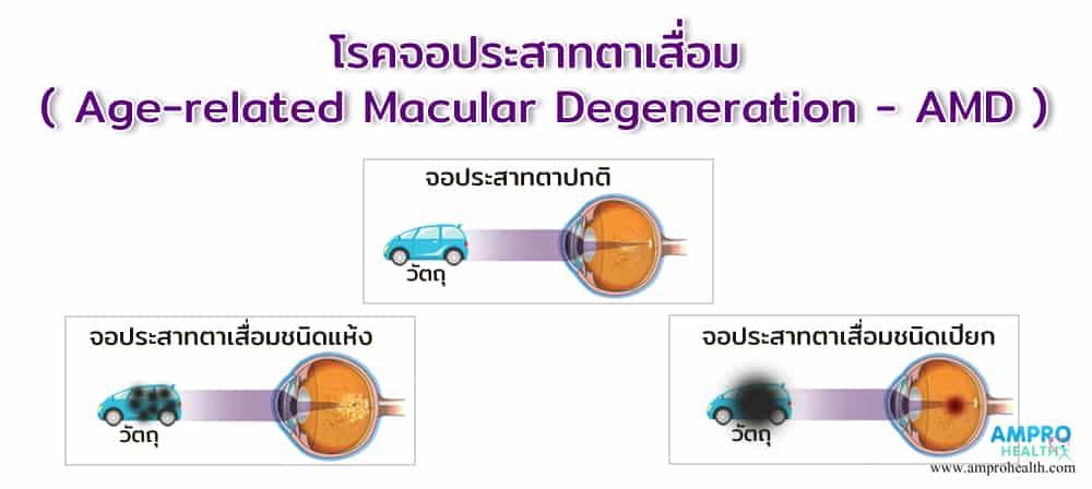 โรคจอประสาทตาเสื่อม ( Age-related Macular Degeneration - AMD )