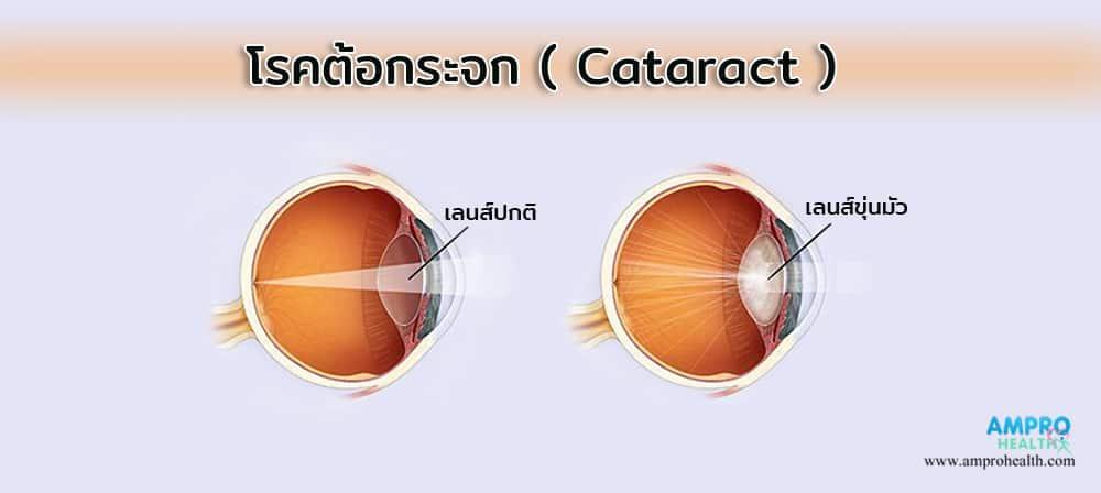 โรคต้อกระจก ( Cataract )