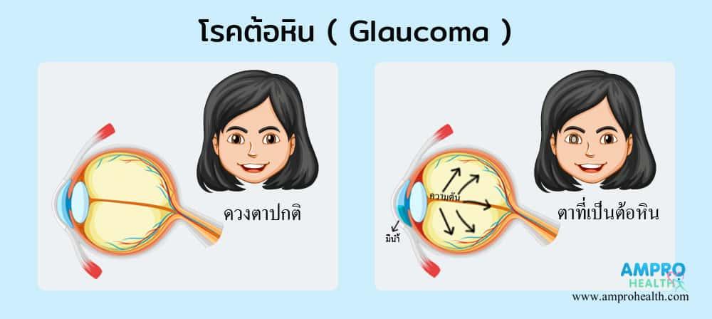 โรคต้อหิน ( Glaucoma ) เป็นอย่างไร