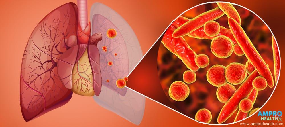 โรคปอดบวม ( Pneumonia )