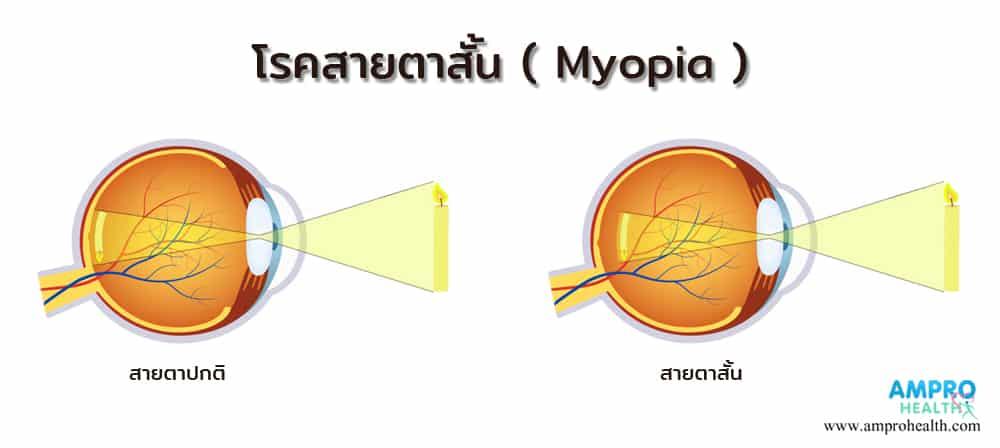 โรคสายตาสั้น ( Myopia )