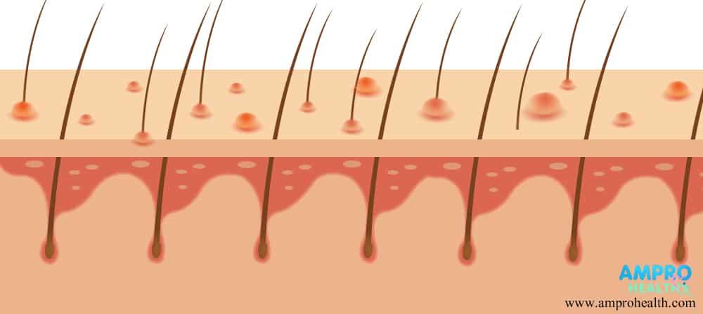 โรคอีสุกอีใส ( Chickenpox / Varicella )