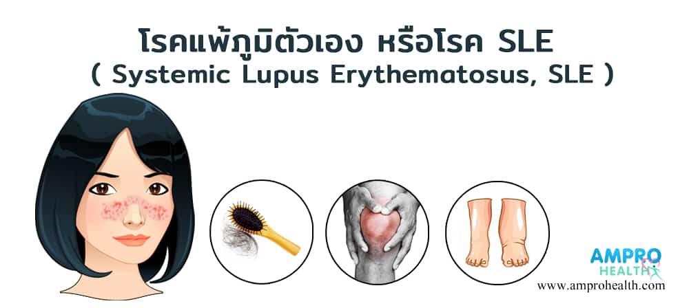 โรคแพ้ภูมิตัวเอง หรือโรค SLE ( Systemic Lupus Erythematosus, SLE )