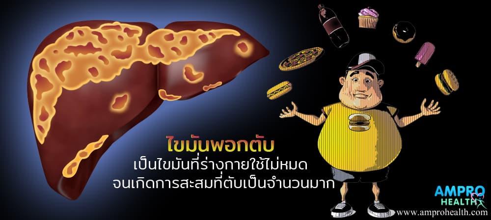 โรคไขมันพอกตับ ( Fatty liver disease )