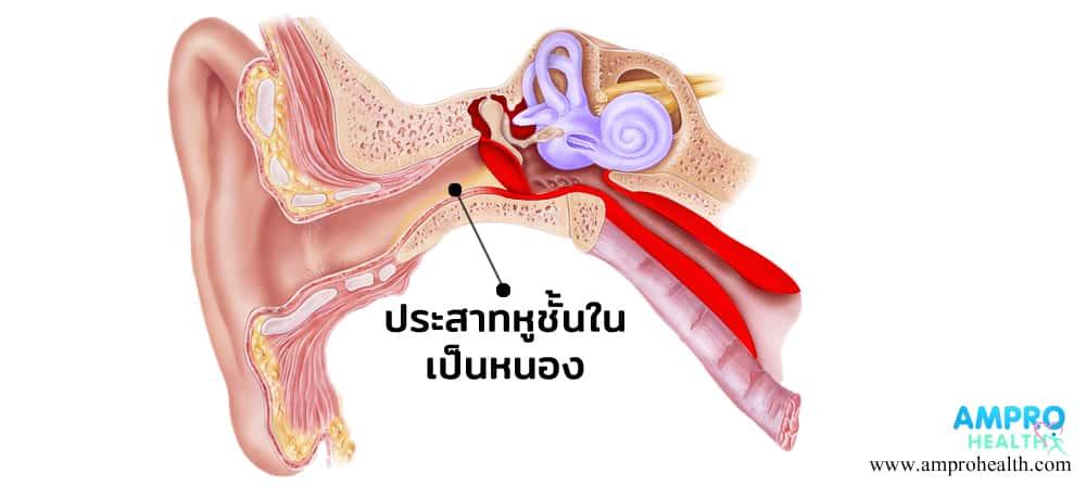 ไข้หูดับ หรือโรคติดเชื้อ สเตรฟโตคอกคัส ซูอิส ( Streptococcus suis )