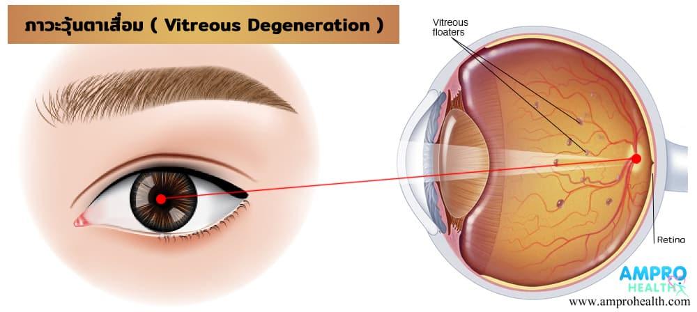 ภาวะวุ้นตาเสื่อม ( Vitreous Degeneration ) เป็นอย่างไร